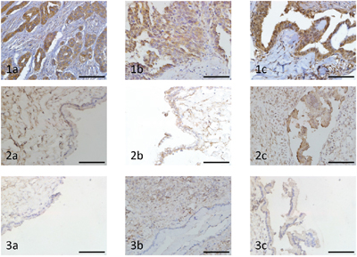 Immunohistochemical analysis of Notch1, Jagged1 and NICD expression in ovarian carcinoma and benign ovarian tumour (original magnification ×400, scale bar shows 50 μm).