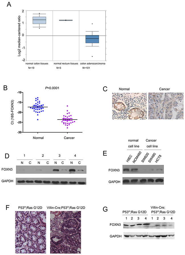 The expression of FOXN3 was decreased in colon cancer.