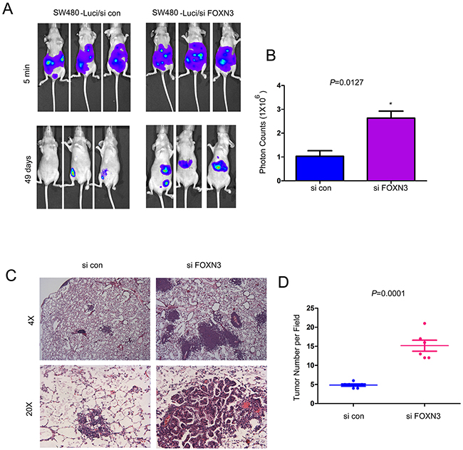 Knocking down the expression of FOXN3 promoted the metastasis of colon cancer cells.
