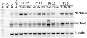 Nectin-4 and Nectin-1 are expressed in human mesothelial cells and ovarian cancer patient samples.
