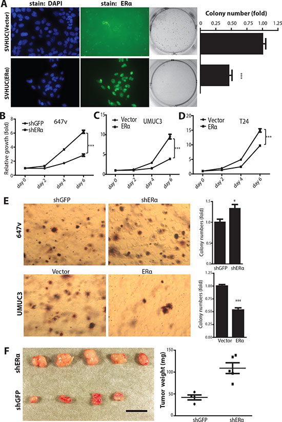 ERα inhibits carcinogen-induced cell malignant transformation and BCa cell growth.