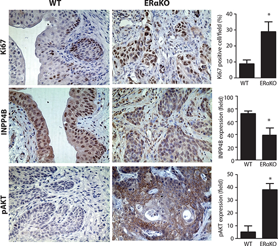 Reduced INPP4B and pAKT expression in BBN treated mouse BCa tissues.