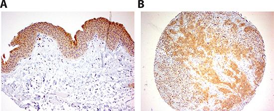 INPP4B immunoreactivity in human bladder tissue.