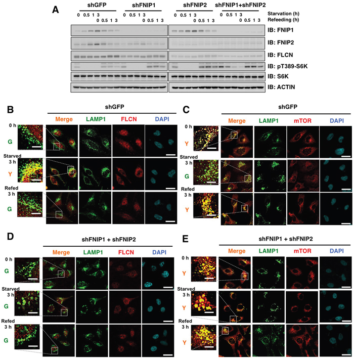 FNIP knockdown results in increased mTOR lysosomal localization and diffusion of FLCN in HeLa cells.