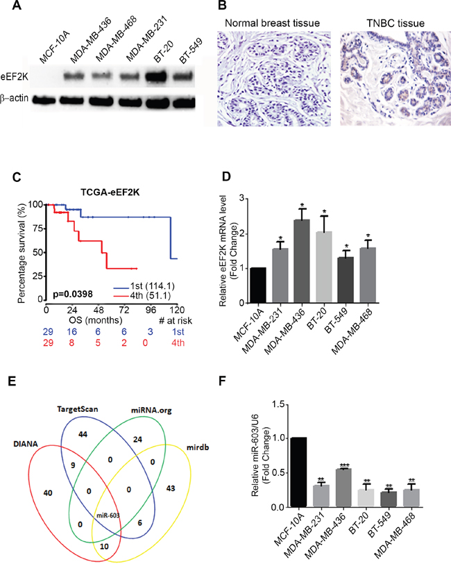 Figure 1. eEF2K protein and mRNA is overexpressed in TNBC cell lines and patients tumor samples.