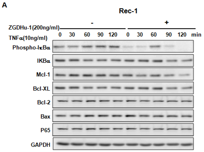 ZGDHu-1 blocks the TNFα-induced NF-κB signaling pathway and anti-apoptosis protein expression in three MCL cell lines.