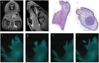 Fluorescence-guided tumor resection: Same animal with a 1.31 mm large tumor in the left anterior tongue as shown on preoperative MRI (a, b, white arrow marking tumor).