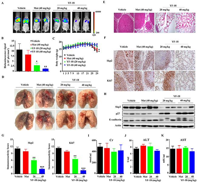 In vivo anti-lung cancer efficacy of YF-18.