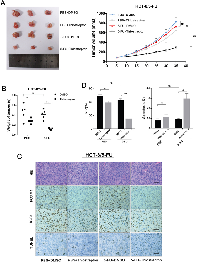 Inhibition of FOXM1 resentisizes resistant CRC to 5-FU in vivo.