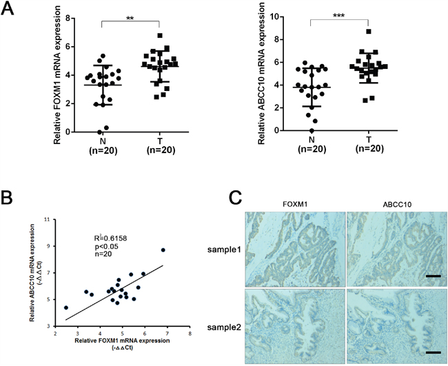 The level of FOXM1 and ABCC10 are correlated in CRC patient tissues.