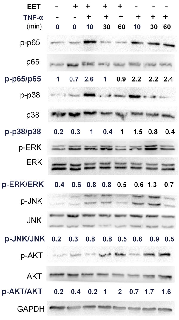 EET inhibits the NF-κB pathway.