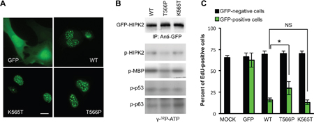 Effect of the T566P mutation on cellular localization, HIPK2 kinase activity, and cell proliferation.