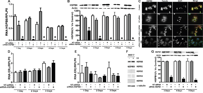 HSPB8 silencing and its effect on expression of ERα and ERβin MCF-7 cell line.