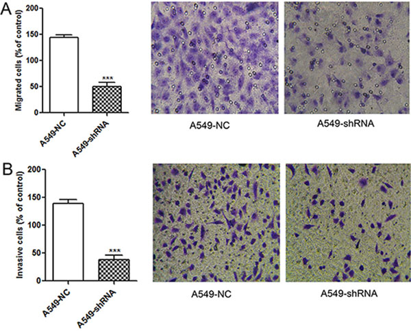 Reducing migration and invasion abilities of A549 cells by lentivirus-mediated RNAi.