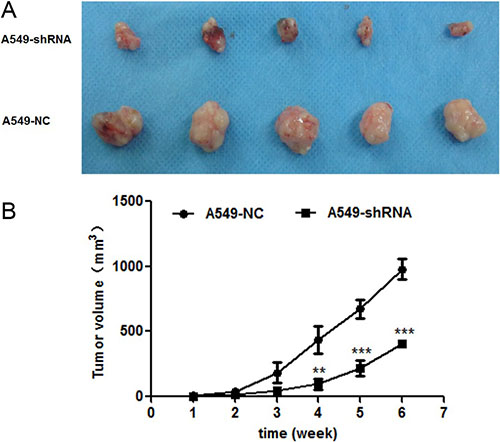 Effect of B7-H4shRNA on lung cancer in vivo.