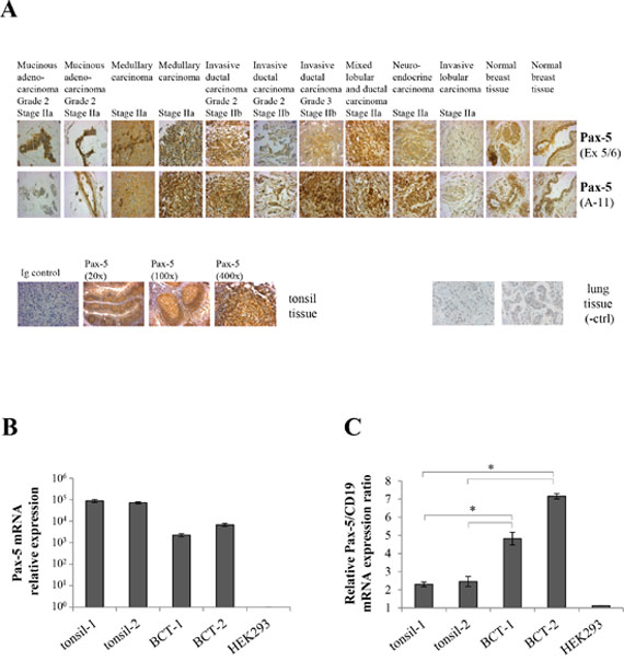 Pax-5 is expressed in clinical breast cancer tissues.