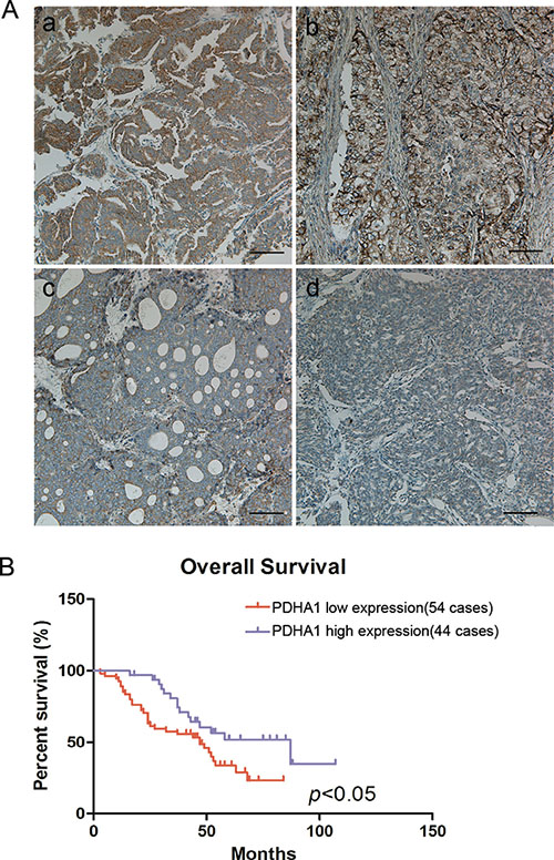 Reduced PDHA1 expression was correlated with poor prognosis.