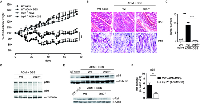 Immunoproteasome subunit LMP7 is essential for development of colitis-associated cancer (CAC).