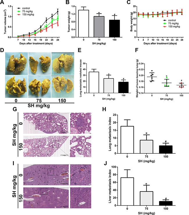 SH inhibited breast cancer metastasis in a 4T1 metastatic mouse model.