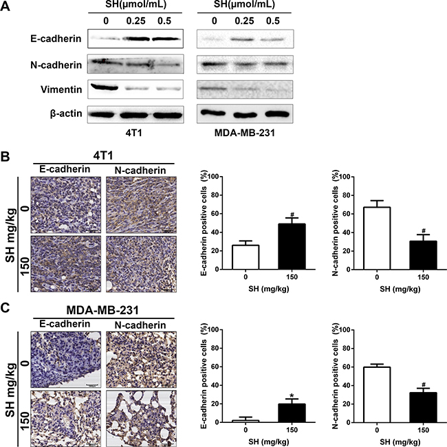 SH reversed EMT process in breast cancer cells.