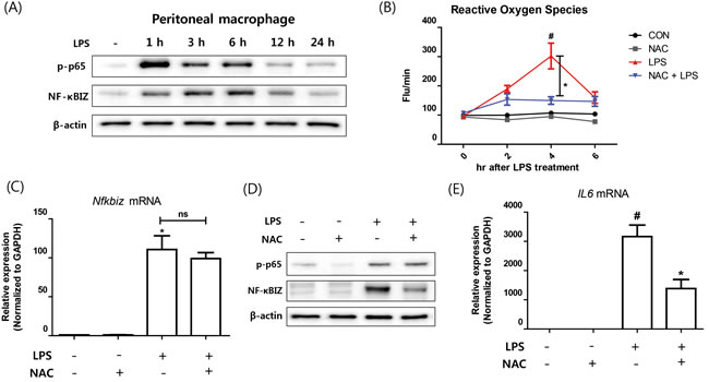 Effect of oxidative stress on NF-κBIZ activation in macrophages.