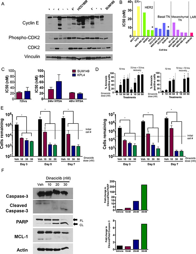 CDK2 is a target in breast cancers including IBC.