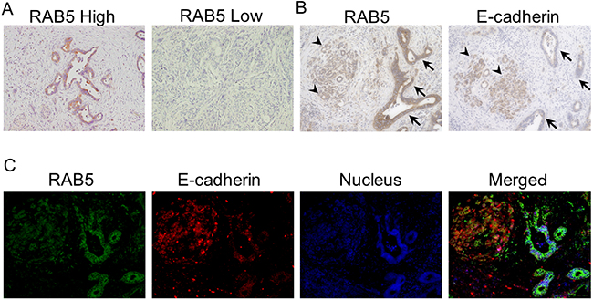 Immunohistochemical staining of RAB5 and E-cadherin in primary pancreatic cancer samples.