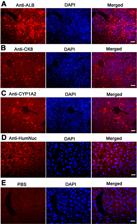 The expression of ALB, CK8, and CYP1A2 in graft hepatic tissues of recipient mice.