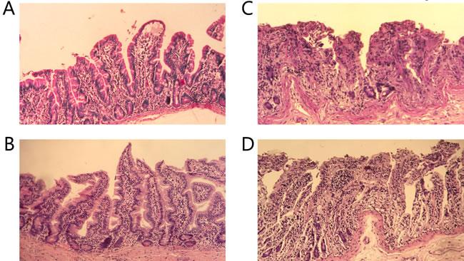 Histopathology of ileum sections.
