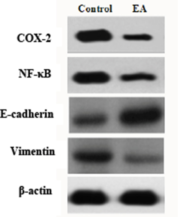 Western blot analysis on the expression of COX-2, NF-κB, E-cadherin and Vimentin.