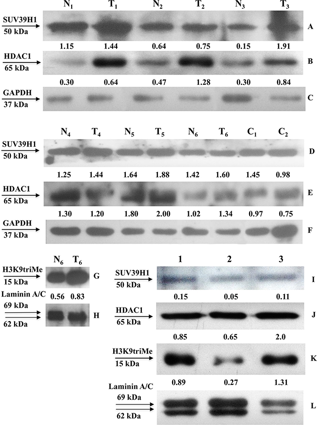SUV39H1, HDAC1 and H3K9triMe expression in human gastric tissues and cell lines.