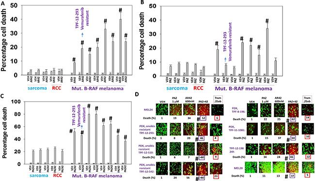 Pazopanib and AR42 interact to kill PDX isolates of mutant B-RAF melanoma including vemurafenib resistant cells.