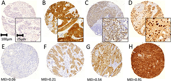 Representative immunohistochemical staining examples for pan-MAGE (M3H67).