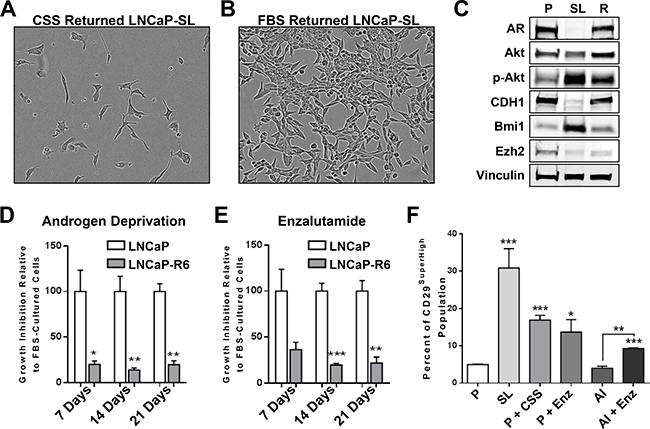Reprogramming in vitro by androgen-deprivation and acquired therapy resistance.