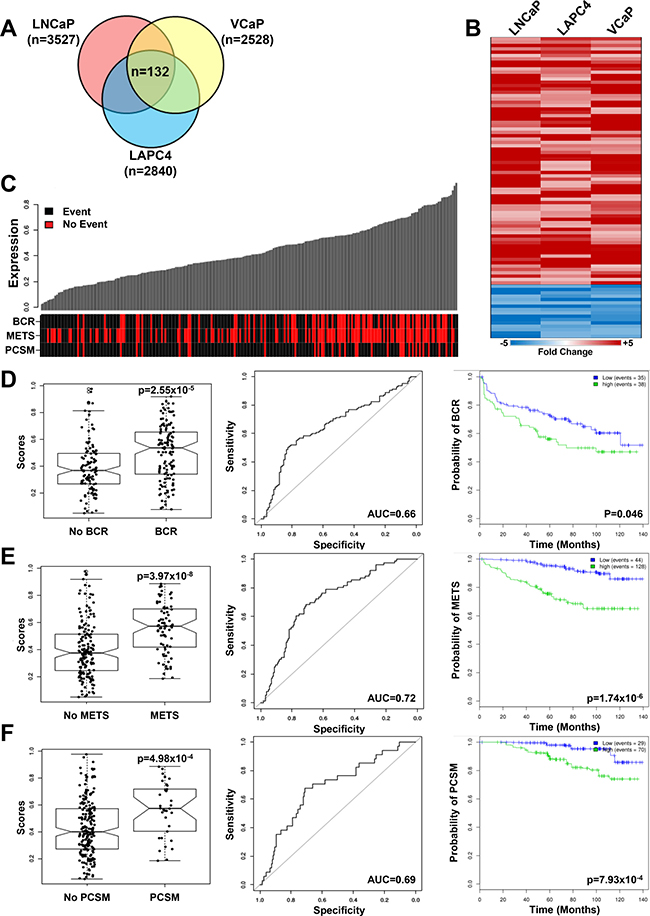 Reprogrammed PCa cells share a gene signature that correlates with adverse outcomes in patients.