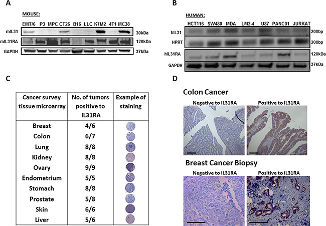 IL31 is expressed in different cancer cell lines and human cancer tissue.