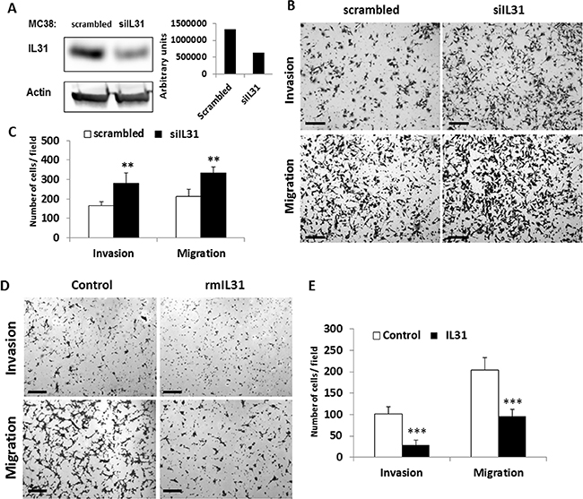 IL31 inhibits tumor cell invasion and migration.