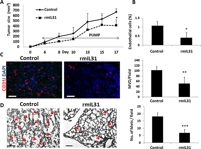 IL31 inhibits angiogenesis and lung metastasis in 4T1 metastatic breast carcinoma.
