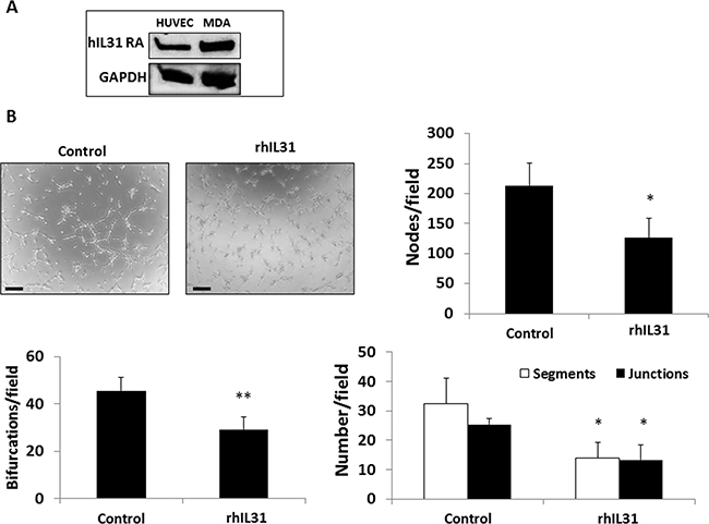 IL31 directly inhibits endothelial cell tube formation.