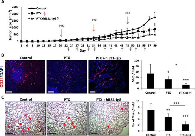 IL31 therapy enhances the anti-cancer activity of paclitaxel chemotherapy.
