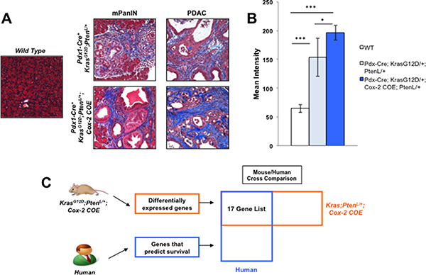 Mouse/Human array data comparison identifies MTSS1 as an inflammation linked gene that predicts poor prognosis in human PDAC.
