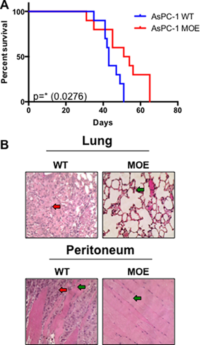 Increased MTSS1 expression leads to significantly prolonged survival in vivo.
