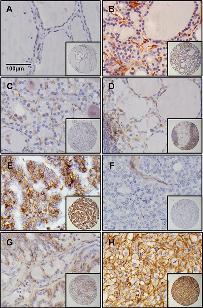 Dysadherin is only expressed in malignant thyroid tissues.