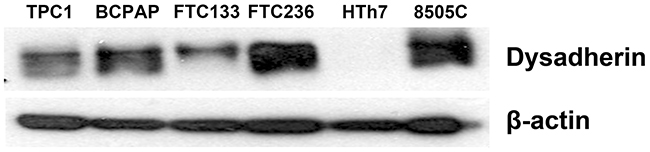 Dysadherin is expressed in human thyroid cancer cell lines.