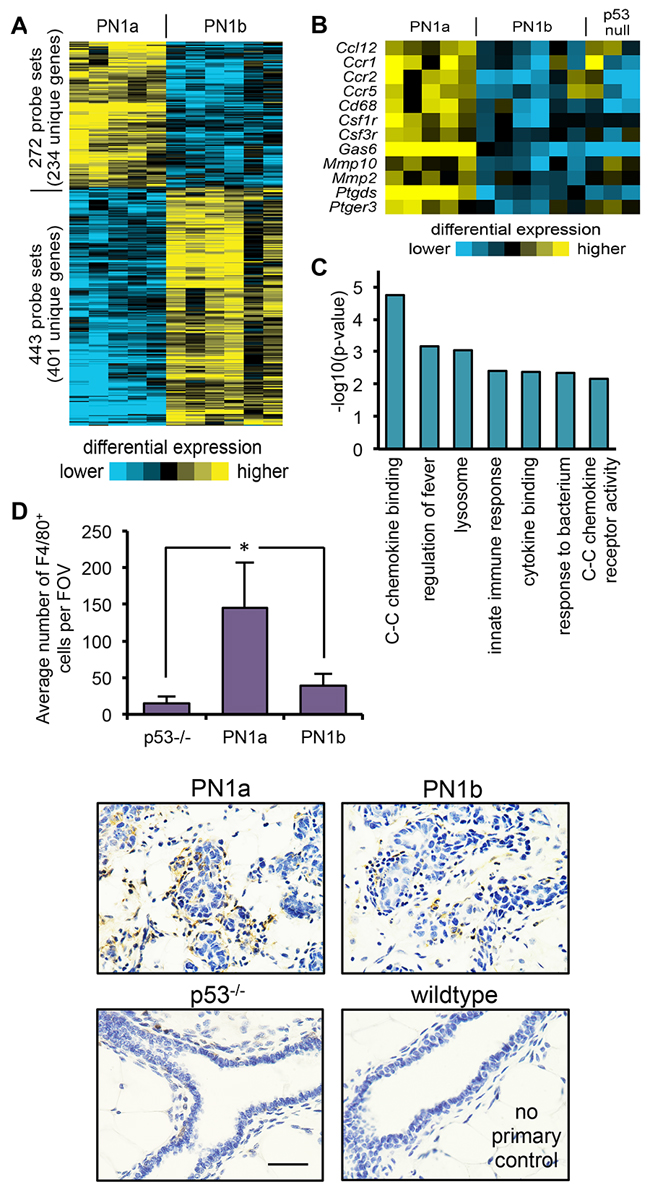 PN1a lesions have increased infiltrating macrophages as compared to PN1b lessions.