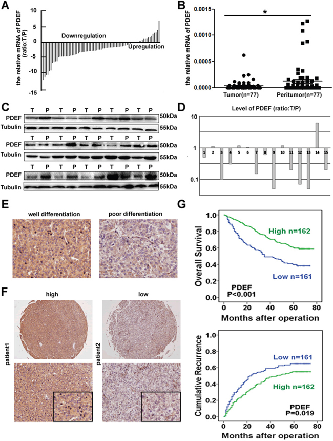 Downregulation of PDEF correlated with human HCCs.