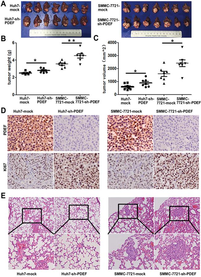Knockdown of PDEF enhances tumor growth and metastasis in vivo.