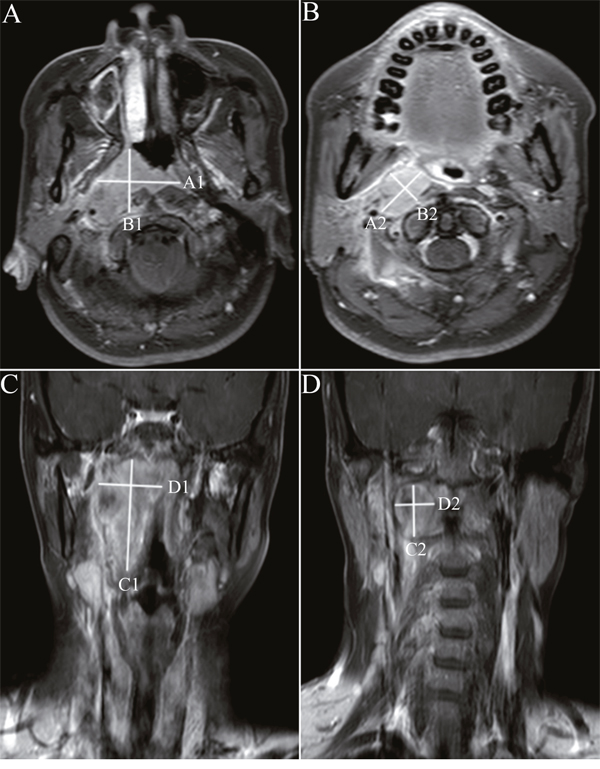 Unidimensional and bidimensional measurements of nasopharyngeal carcinoma in axial and coronal T1-weighted postcontrast MR images.