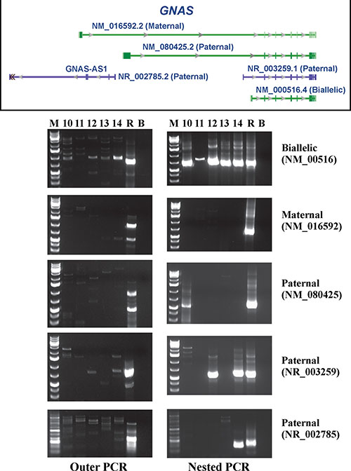 RT-PCR analysis for the expression of the biallelically, maternally, and three paternally expressed GNAS transcripts in cases 10–14.