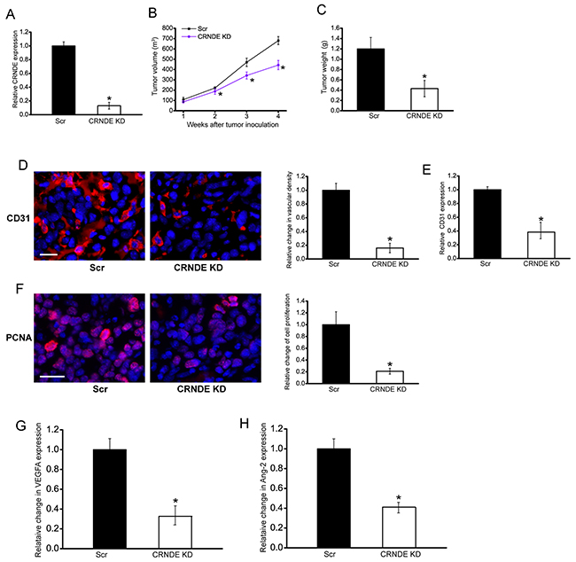 CRNDE knockdown inhibits tumor growth and tumor angiogenesis in vivo.